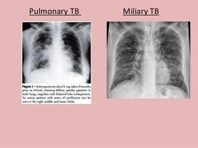 sputum sample for tb